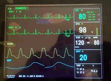 جهاز مراقبة قلبية