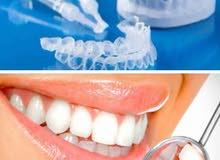 قوالب تبييض الاسنان في المنزل