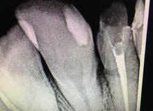 طبيبة اسنان سورية عامه