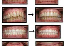 فرصة تقويم الأسنان